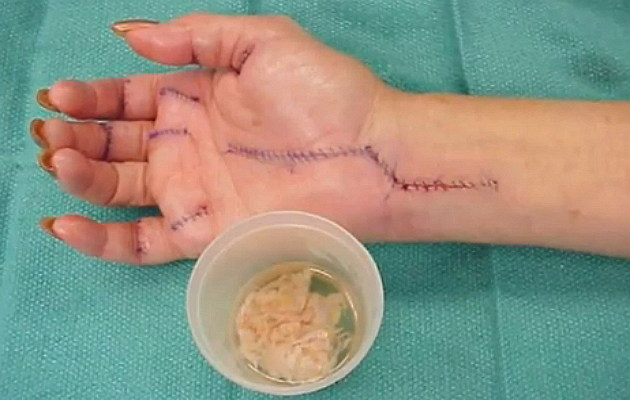 Carpal Tunnel Syndrome after surgery