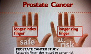 Prostate cancer is now predicted through ring-finger's length Finger-and-Prostate-Cancer